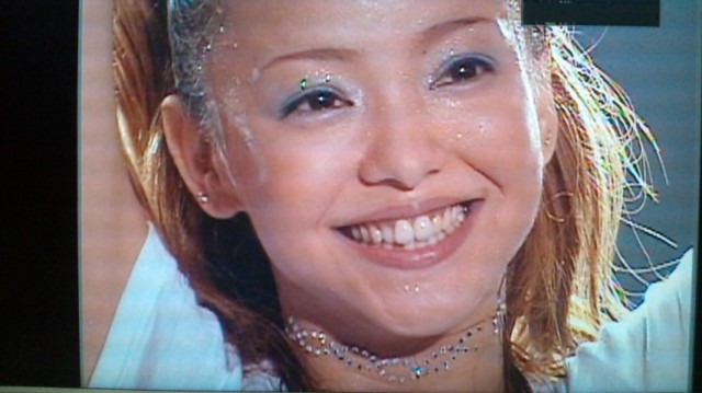 安室奈美恵の整形外科写真?目頭切開,鼻に ...