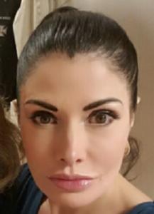 カイヤ唇画像