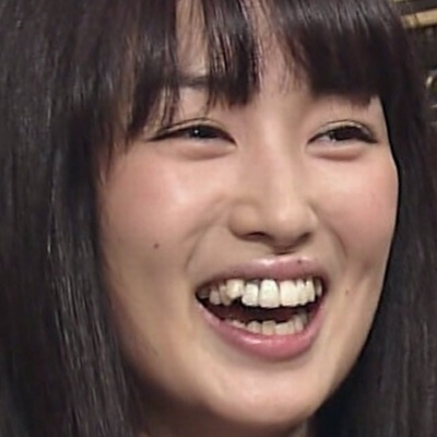 高梨臨の顔はあごと歯を整形して変わった?何かが違う! | 芸能人の ...