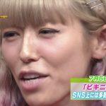 若槻千夏が鼻と目整形した!劣化がヤバい顔になった!